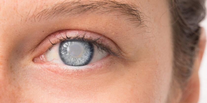 Eye of young girl with corneal opacity